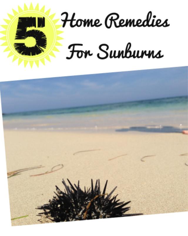 5 Home Remedies For Sunburns