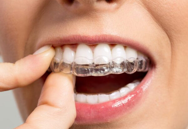 Is Invisalign Braces for You?