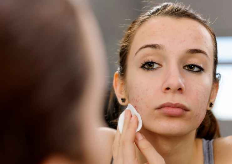 best skincare for teenage acne wash face